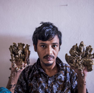 "Abul Bajandar , 28, dubbed Tree Man for massive bark-like warts on his hands and feet, sits at Dhaka Medical College Hospital in Dhaka on June 24, 2019. - Frustrated by worsening condition, a Bangladeshi father dubbed ""Tree Man"" for the bark-like growths on his body said on June 24 he wants to amputate his hands to get relief from unbearable pain. (Photo by Munir UZ ZAMAN / AFP)"