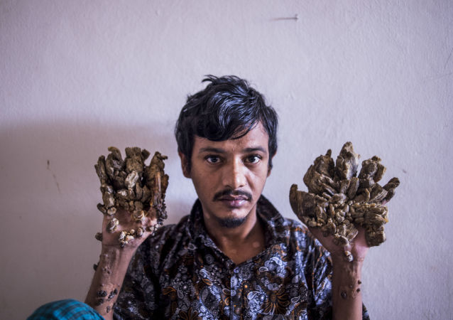 """Abul Bajandar , 28, dubbed Tree Man for massive bark-like warts on his hands and feet, sits at Dhaka Medical College Hospital in Dhaka on June 24, 2019. - Frustrated by worsening condition, a Bangladeshi father dubbed """"Tree Man"""" for the bark-like growths on his body said on June 24 he wants to amputate his hands to get relief from unbearable pain. (Photo by Munir UZ ZAMAN / AFP)"""