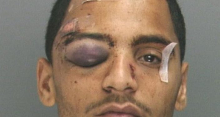 Philadelphia Police Officers Sean McKnight and Kevin Robinson face brutality charges after prosecutors say they knocked a Rivera off a scooter and beat him so severely another officer thought the bloodied man had been shot.