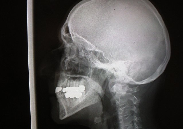 X-Ray scull