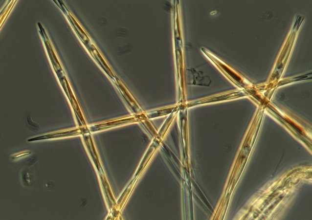 The algae pseudo-nitzchia, which produces the toxic domoic acid, is seen from an algae bloom sample that the NOAA ship Bell M. Shimada collected during its survey this summer on the West Coast.