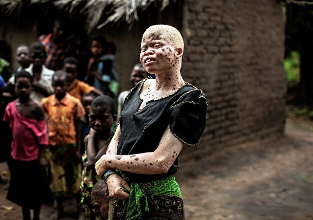 Mainasi Issa, a 23-year-old Malawian albino woman, stands outside her hut in the traditional authority area of Nkole, Machinga district, on April 17, 2015.