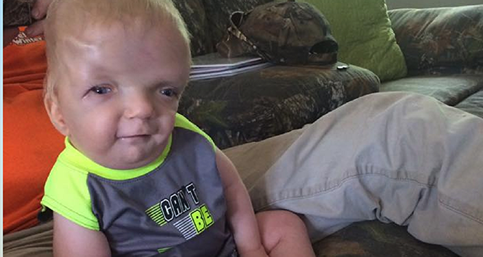 Terminally Ill Toddler Becomes Cruel Viral Meme, Mother Fighting to Stop It Spreading