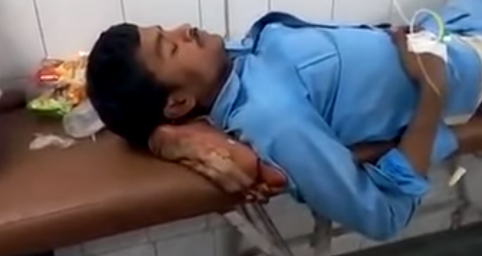 Investigation launched in India after patient's amputated leg was used as pillow