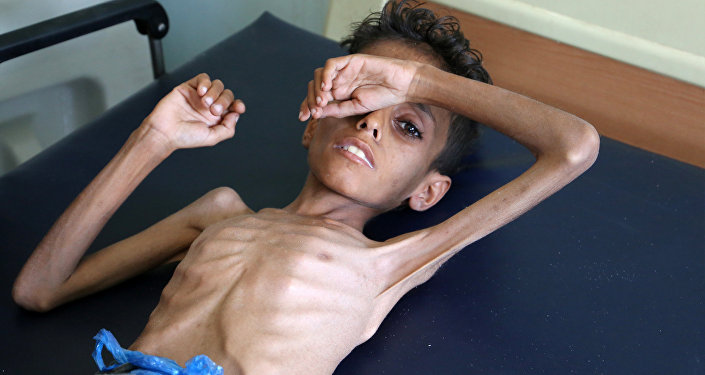 Yemeni boy Ghazi Ali bin Ali, 10, suffering from severe malnutrition lies on a bed at a hospital in Jabal Habashi on the outskirts of the city of Taiz, on October 30, 2018