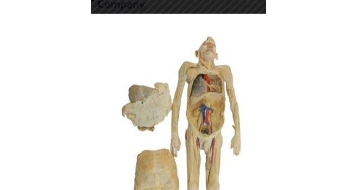 Charlie's Noe daughter Jenny found his body in a catalogue of a plastination company