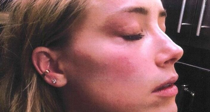 Amber Heard has been accused of fabricating these injuries, which Johnny Depp denies inflicting