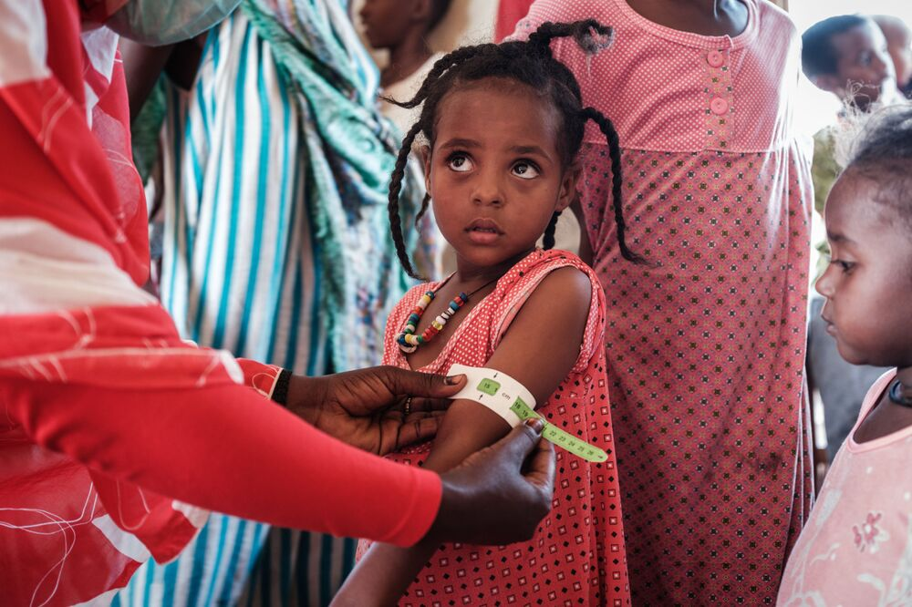 A four-year-old Ethiopian girl who fled the Tigray conflict as a refugee is measured at a malnutrition centre at the Village Eight transit centre near the Ethiopian border in Gedaref, eastern Sudan, on 2 December 2020.