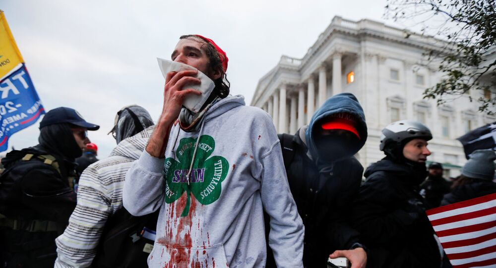 SENSITIVE MATERIAL. THIS IMAGE MAY OFFEND OR DISTURB An injured supporter of U.S. President Donald Trump reacts during a protest against the certification of the 2020 U.S. presidential election results by the U.S. Congress, outside the U.S. Capitol in Washington, U.S., January 6, 2021