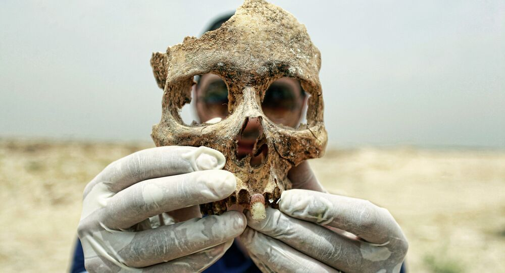 A forensic expert holds up part of a human skull found in a mass grave some 10 kilometers from the Iraqi central shrine city of Najaf. File photo