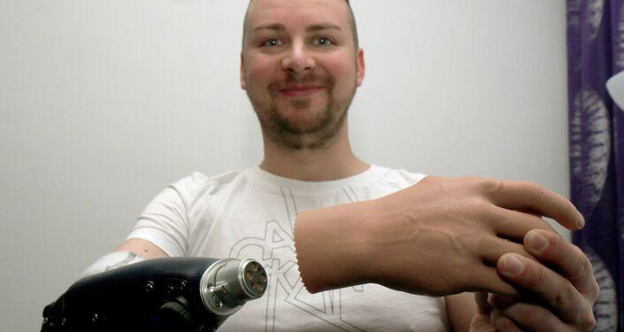 Milorad Marinkovic With His Bionic Hand