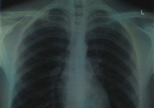 chest x-ray half