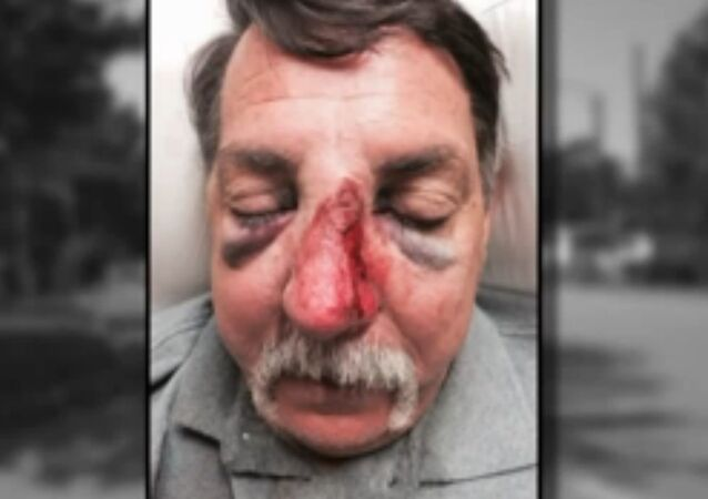 A Missouri man says he suffered serious injuries including a broken nose when an off-duty police officer assaulted him in an incident of road-rage.