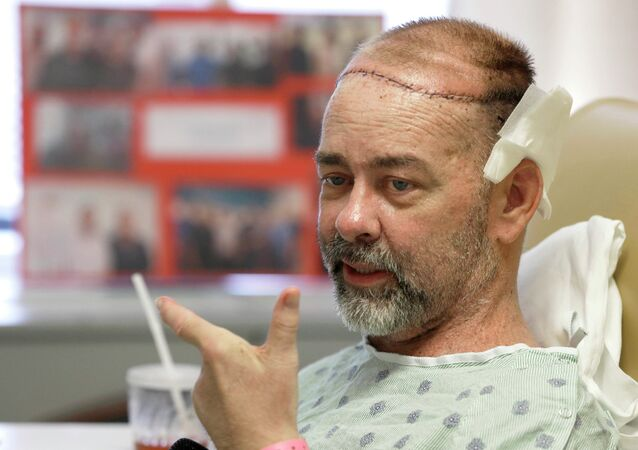 A Texas man has had the first successful skull-scalp transplant from a human donor at the same time as he received a double organ transplant, saving his life amid a perfect storm of ailments.