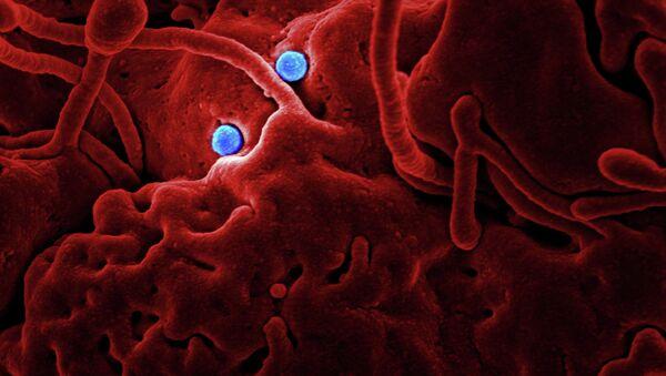 MERS Coronavirus Particles - Sputnik International