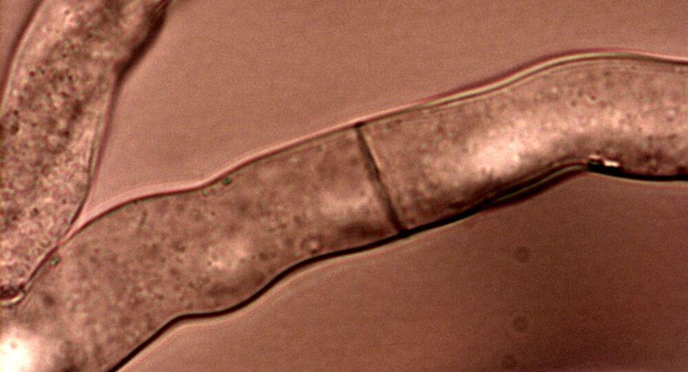 Hyphae of Neurospora crassa with septum and porus