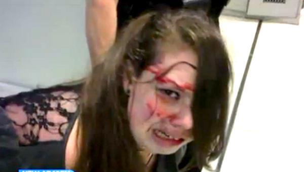 Disabled Woman Beaten Bloody by TSA - Sputnik International