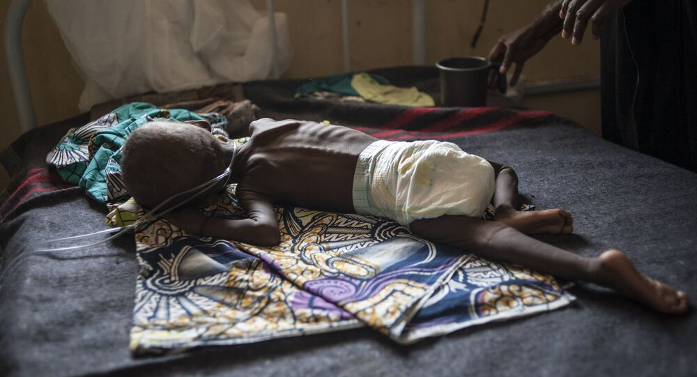 A young child suffering from severe malnutrition lies on a bed in the ICU ward at the In-Patient Therapeutic Feeding Centre in the Gwangwe district of Maiduguri, the capital of Borno State, northeastern Nigeria, on September 17, 2016