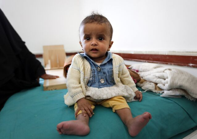 A Yemeni infant suffering from malnutrition waits for treatment at a medical center in Bani Hawat, on the outskirts of the Yemeni capital Sanaa, on January 9, 2017.