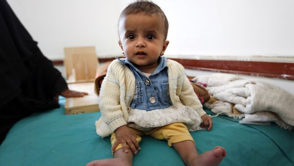 A Yemeni infant suffering from malnutrition waits for treatment at a medical center in Bani Hawat, on the outskirts of the Yemeni capital Sanaa, on January 9, 2017. - Sputnik International