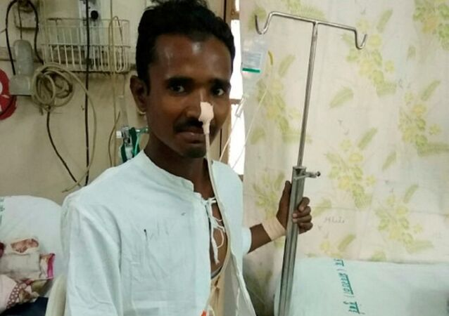 Construction worker survives being impaled by pole through his groin