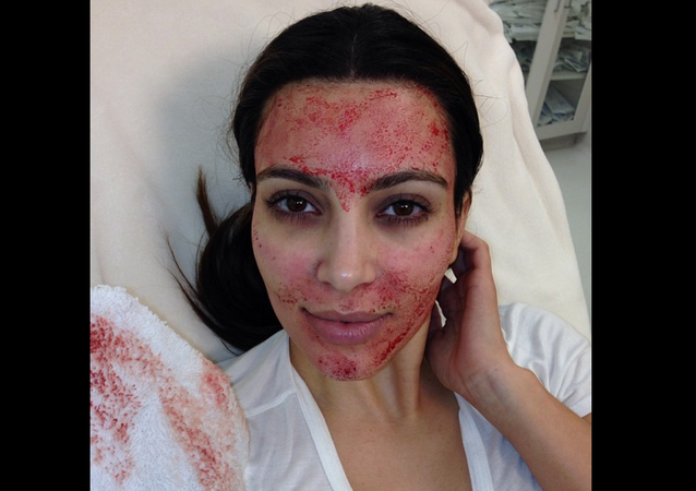 Kim Kardashian, showing off 'vampire facial' in 2013