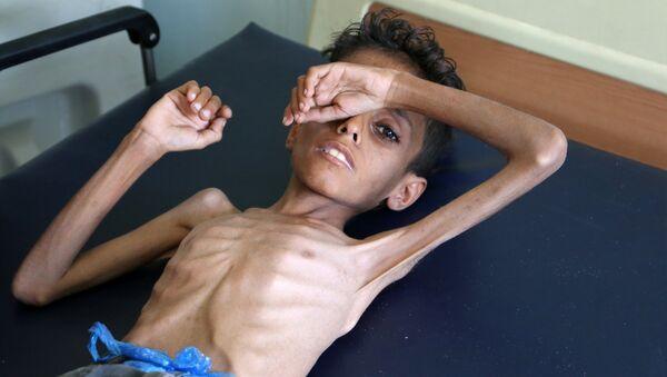 Yemeni boy Ghazi Ali bin Ali, 10, suffering from severe malnutrition lies on a bed at a hospital in Jabal Habashi on the outskirts of the city of Taiz, on October 30, 2018 - Sputnik International