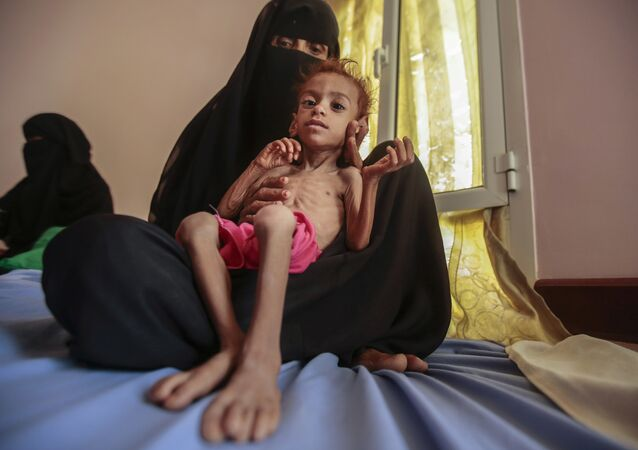 In this Oct. 1, 2018 file photo, a woman holds a malnourished boy at the Aslam Health Center, in Hajjah, Yemen as millions of Yemenis are edging closer to famine and fatal disease one year after a Saudi-led coalition imposed a blockade on sea, land and air routes in the Arab world's poorest country.
