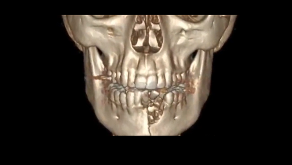 The reconstructed computed tomography of Austin Burton's jaw following the March 26, 2018 event in which his VGOD vaporizer overheated and exploded.  - Sputnik International