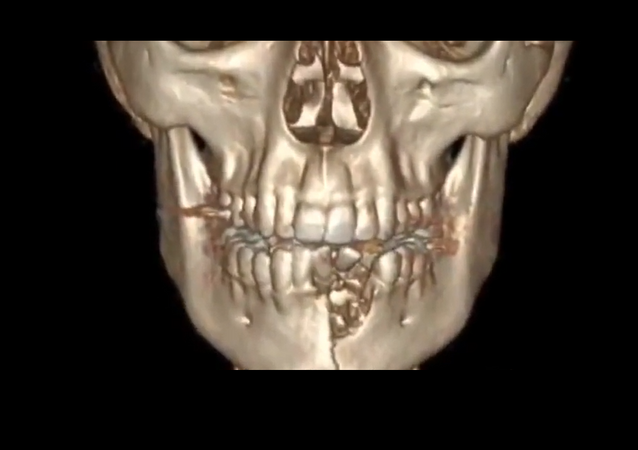 The reconstructed computed tomography of Austin Burton's jaw following the March 26, 2018 event in which his VGOD vaporizer overheated and exploded.