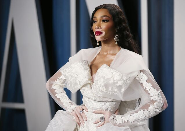 Winnie Harlow attends the Vanity Fair Oscar party in Beverly Hills during the 92nd Academy Awards, in Los Angeles, California, U.S., February 9, 2020