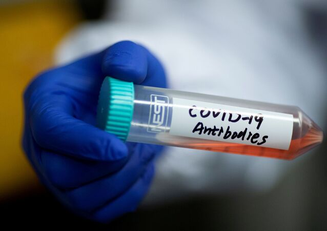 cientist Linqi Zhang shows a tube with a solution containing COVID-19 antibodies in his lab where he works on research into novel coronavirus disease (COVID-19) antibodies for possible use in a drug at Tsinghua University's Research Center for Public Health in Beijing, China, March 30, 2020