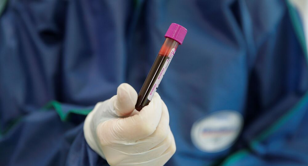 A medical specialist holds a testing tube with blood in Hadassah clinic, which offers tests for for antibodies against the coronavirus disease (COVID-19), at the Skolkovo innovation centre on the outskirts of Moscow, Russia April 24, 2020