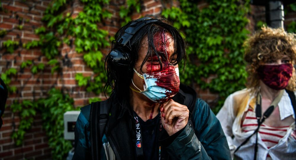 A journalist is seen bleeding after police started firing tear gas and rubber bullets near the 5th police precinct following a demonstration to call for justice for George Floyd, a black man who died while in custody of the Minneapolis police, on May 30, 2020 in Minneapolis, Minnesota